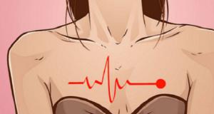 Как да разпознаем инфаркт при жените: 5 симптома