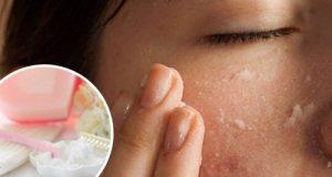 Содата може да те подмлади с цели 10 години! Ето как да я използваме!