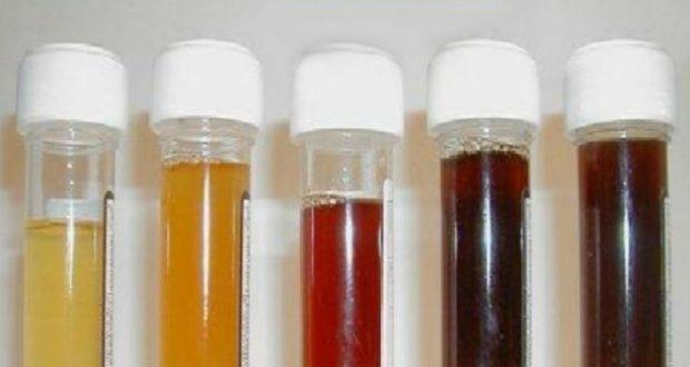 Какъв е цветът на урината: Oт цистит до рак. Важна информация за състоянието на организма