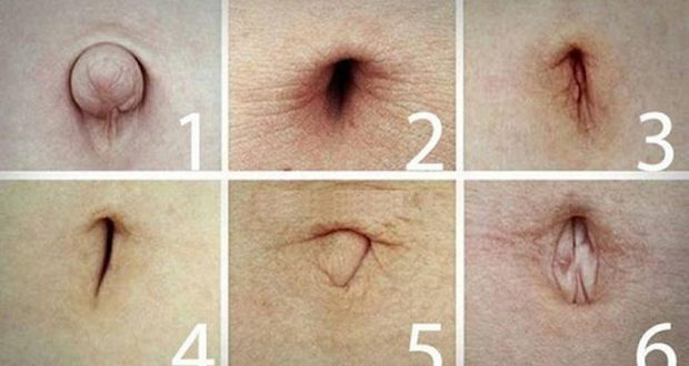 Вижте формата на пъпа си за да разберете какви заболявания ви заплашват - много е точно!