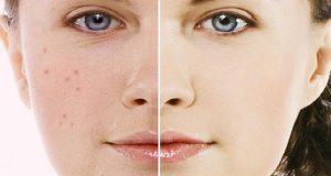 Солта е най-големият враг на старостта – тази солена маска стяга отпуснатата кожа и изглажда бръчките за 5 дни